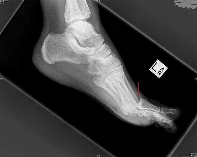 Turf Toe Treatment-lowerextremityinjury.pbworks.com